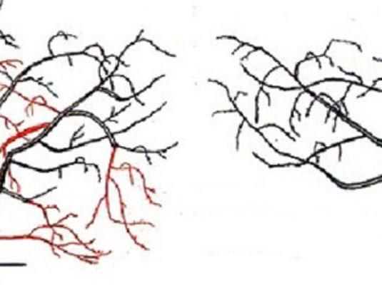 Обрезка вишни