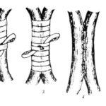 Рисунок аблактировки